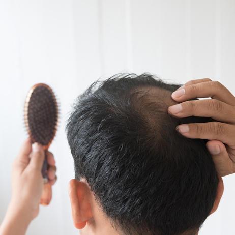 Генетическое выпадение волос обычно проявляется после 20 лет