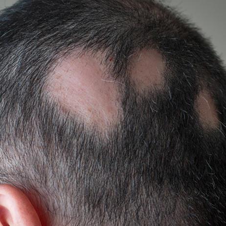 При круговом выпадении волос возникают лысины размером с монету