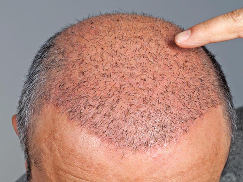 При пересадке волос волосы помещаются на макушку головы
